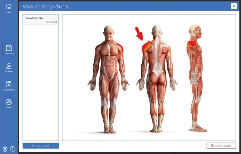 Body Charts en historias clínicas con Archivex Clinical